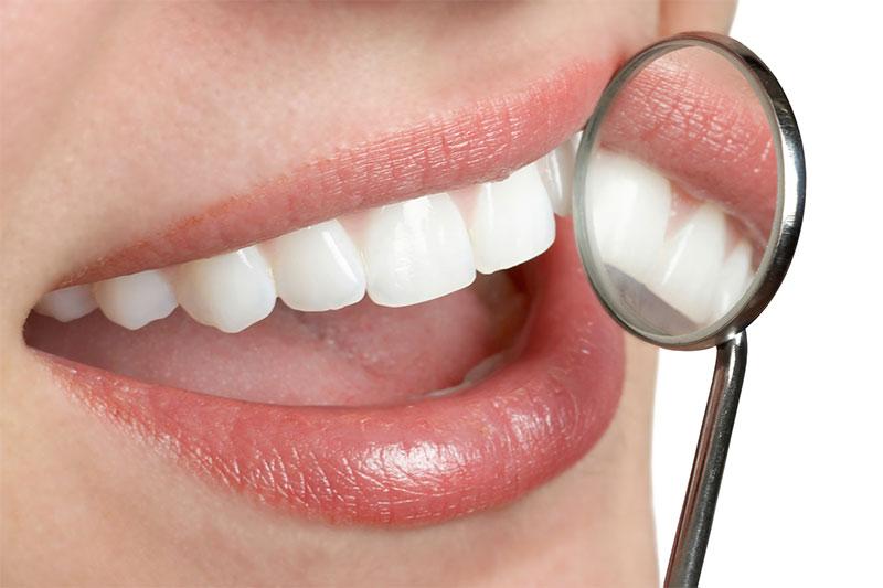 Sunlife Dental Group Dental Offer