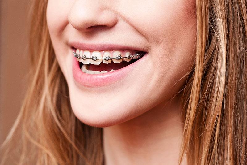Palm Desert Orthodontics